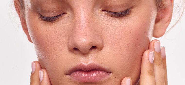 Акне или еще раз об угревой болезни ᐉ советы дерматолога