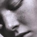 Обострение акне - правильный выбор макияжа