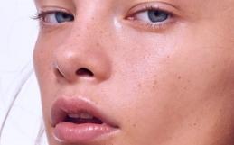 Демодекоз, розацеа ▷ восстанавливаем микробиом кожи!