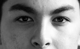 5 мифов про акне ᐉ симптомы, причины возникновения и лечение