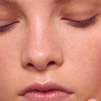 Фототерапия IPL ▷ лечение светом розацеа, купероза, акне и гиперпигментаций