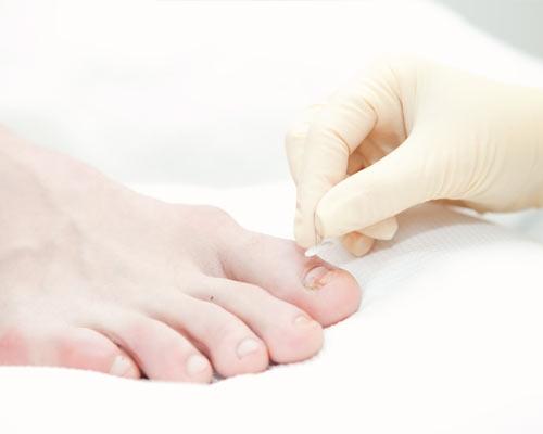Коррекция вросшего ногтя пластинами