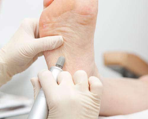 Лечение трещин стопы