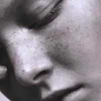 Обострение акне ᐉ правильный выбор макияжа